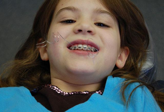 Diş teli çocuklar için neden önemli?