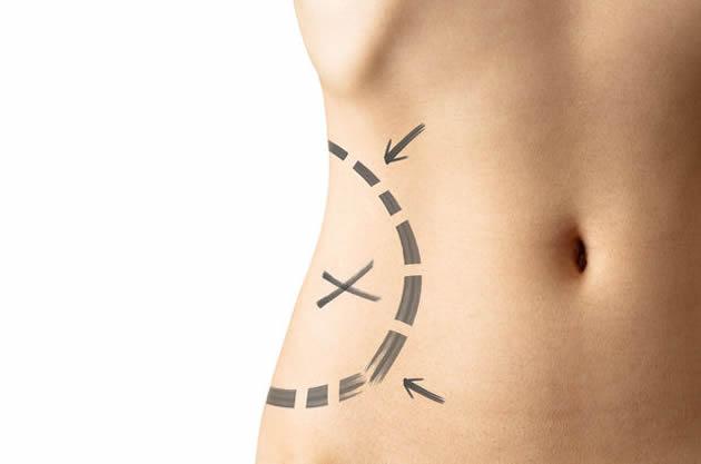 Liposuction ile bölgesel zayıflama