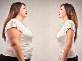 Obezite tedavisi